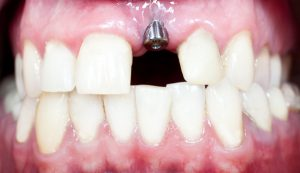 A macro shot of dental implant in the oral cavity (human mouth)